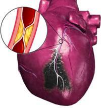 afbeelding van een hart met een hartinfarct