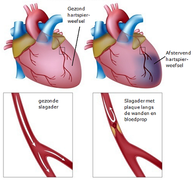 gezond hart en hart met infarct, gezonde slagader en slagader met plaque