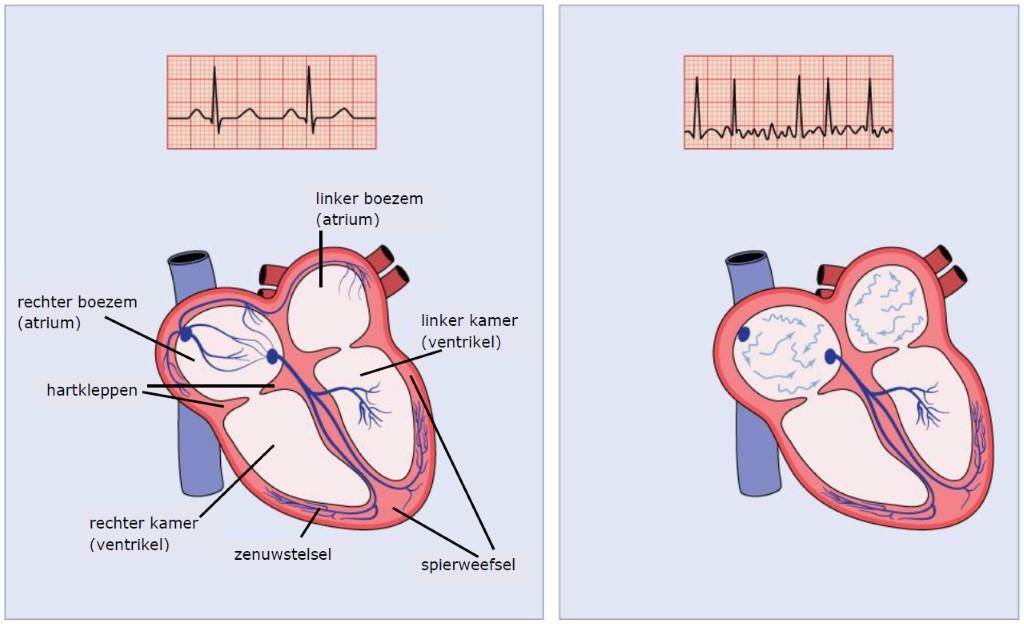 doorsnee hart met en zonder hartritmestoornis