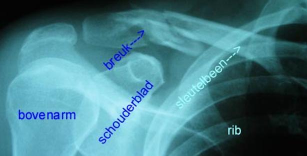 Röntgenfoto van een sleutelbeenbreuk