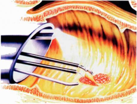 Transanale Endoscopische Microchirurgie