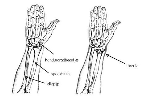 Tekening anatomie pols en tekening gebroken pols