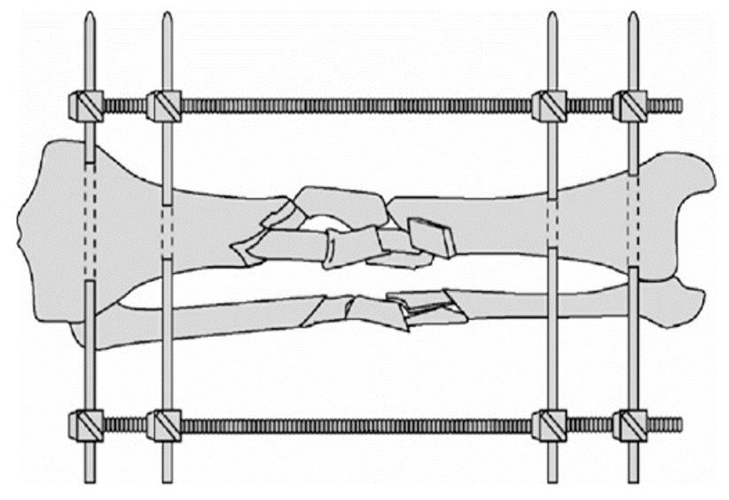 Schematische voorstelling van fixateur externe
