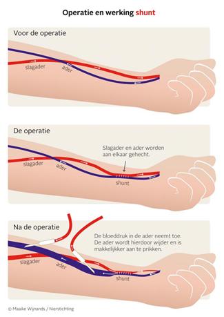 Operatie en werking shunt