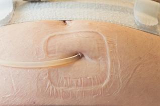 Peritoneale dialysekatheter zonder pleister