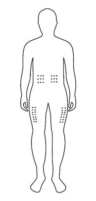 plaatsen waarop een subcutabe injectie gegeven kan worden