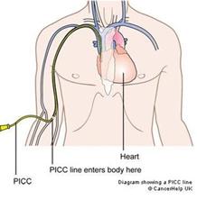 schematische weergave van een PICC