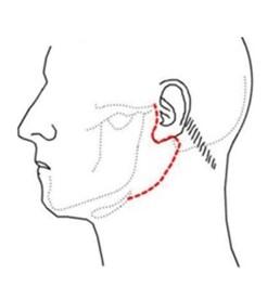 Huidsnede die voor het oor langs naar de hals om de oorspeekselklier te vinden en te kunnen verwijderen
