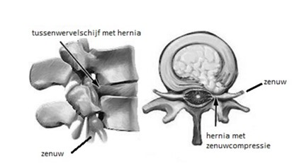 Plaatje 1 geeft het zijaanzicht van een tussenwervelschijf met hernia en de zenuw. Plaatje 2 is een dwarsdoorsnede van een hernia met zenuwcompressie