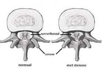 Dwarsdoornsnede van een normale wervel en een wervel met stenose