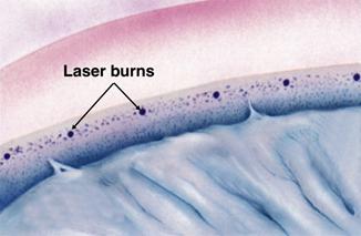 brandplekjes van de laserbehandeling