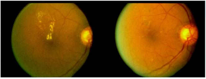 netvlies voor en na een focale laserbehandeling