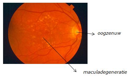 netvlies met maculadegeneratie