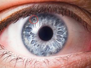 oog met gaatje door perifere iridotomie