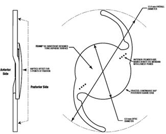 schematische weergave van een torische lens