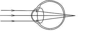 verziendheid zonder (bril)correctie
