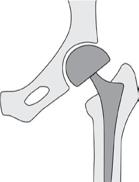 Prothese voor kop van het dijbeen