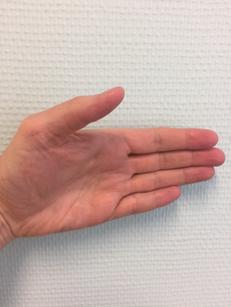 foto EPB oefening duim in neutrale positie