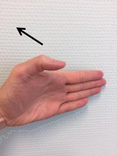 foto EPB oefening duim in gebogen positie