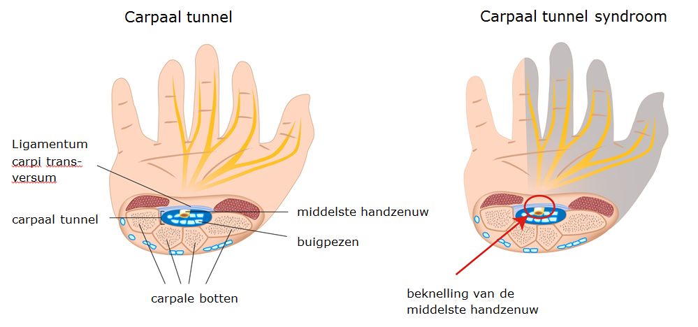 Tekening anatomie carpaal tunnel