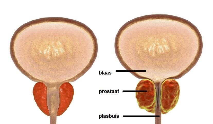 Tekening gezonde en vergrote prostaat
